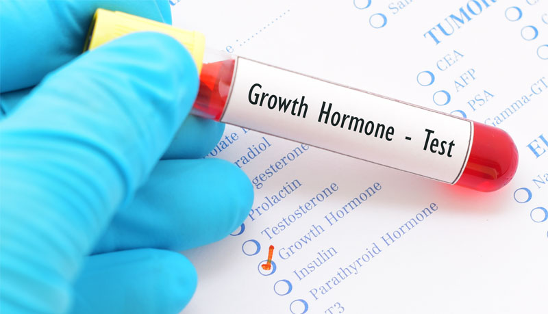 Is there an Alternative to the Cost of Growth Hormone Therapy?