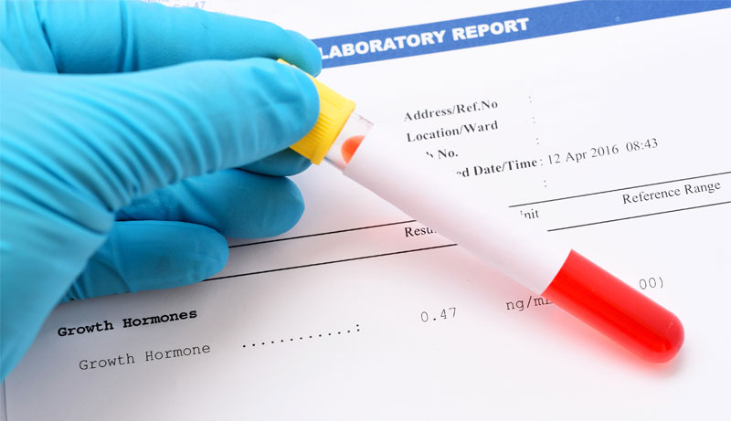 What If Your Blood Test Indicates Growth Hormone Deficiency?