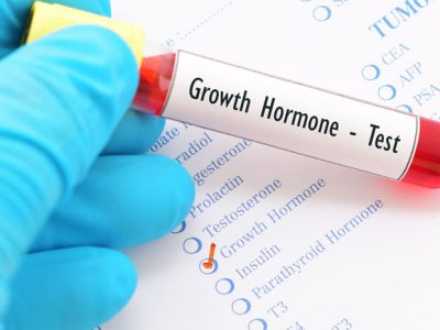 Blood Testing for Growth Hormone Levels