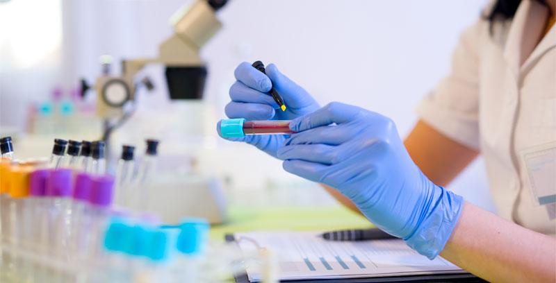 How Do I Know If I Need Testosterone Treatment?