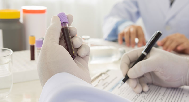 Evaluating Your Growth Hormone Test Results