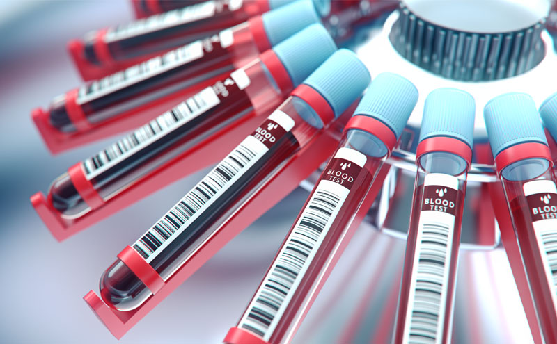 Blood Testing for Hormone Levels