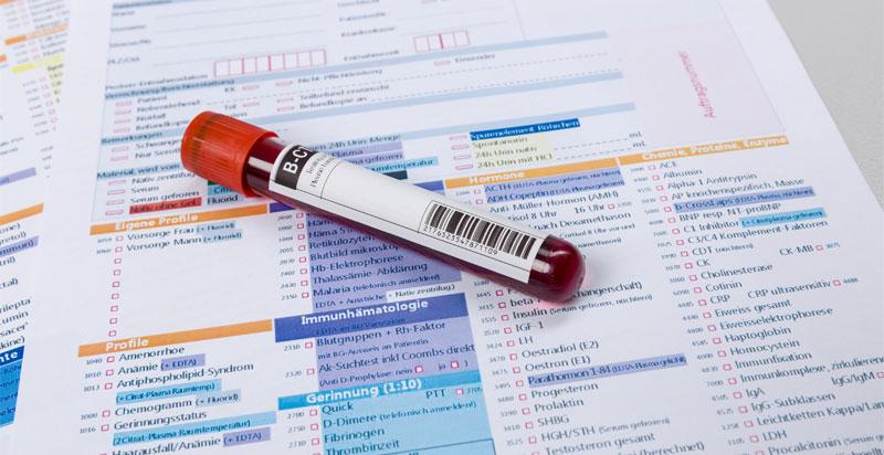 Testosterone/Hormone Testing for Women