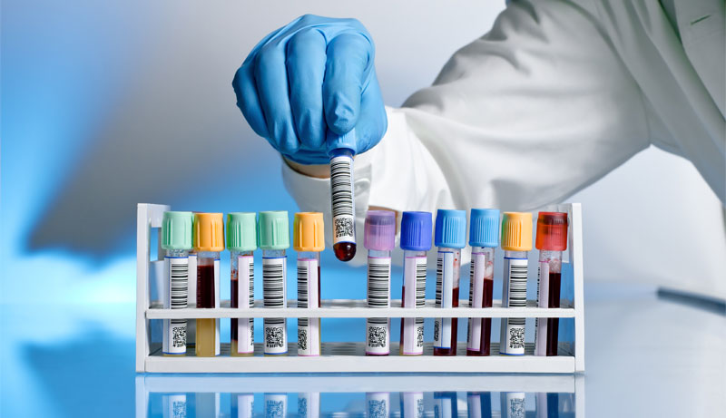 Understanding Your Low Testosterone Blood Test Results